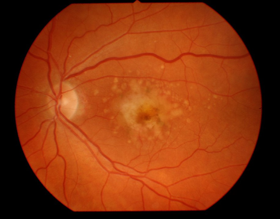 age related macular degeneration with hemorrhage and geographic atrophy
