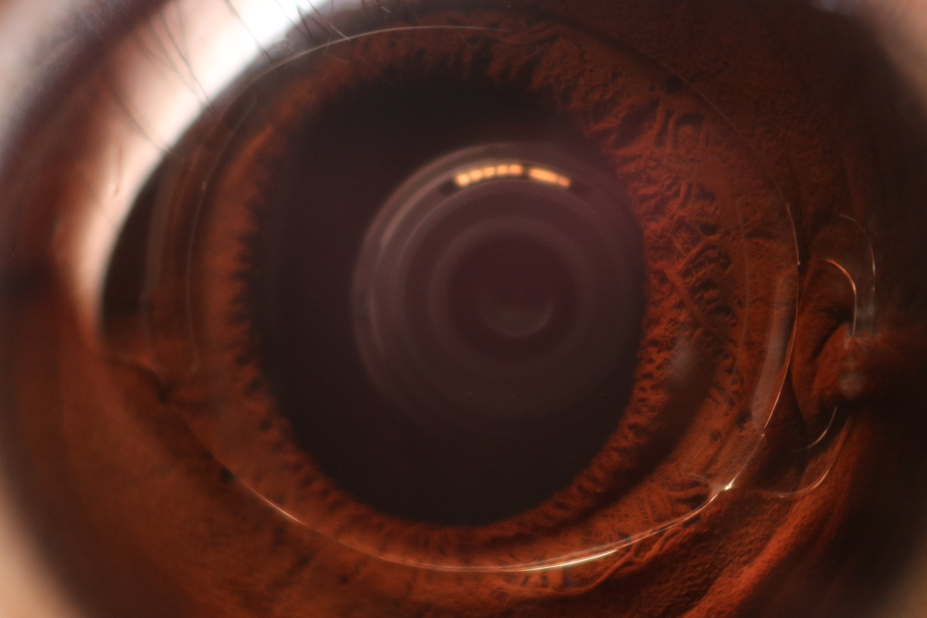 Intraocular Lens In A Phakic Eye