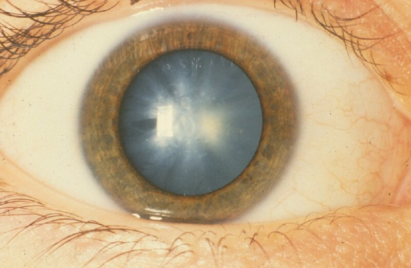 Congenital Eye Cataract
